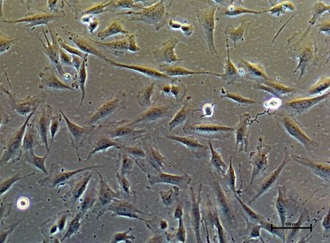 PureStem ES-210, Ecto-ntu Progenitor Cells